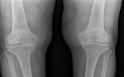 Bone On Bone Knee Pain: Know Your Options