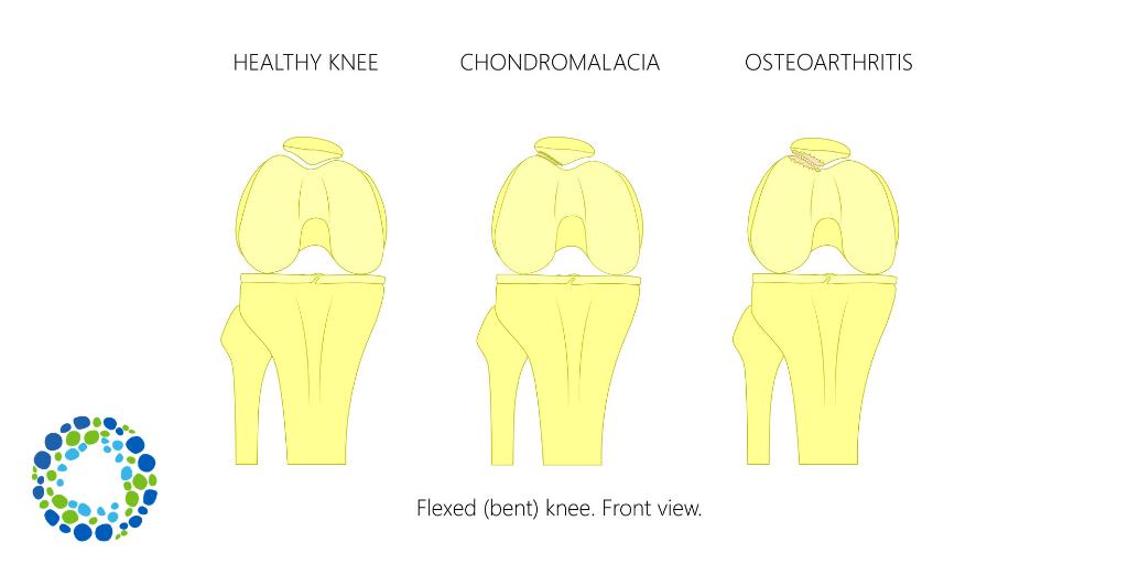 Rendering of a healthy knee joint versus chondromalacia versus osteoarthritis